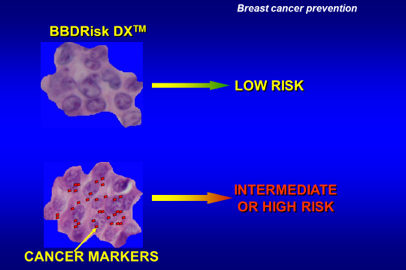 Hyperplasia breast cancer risk image